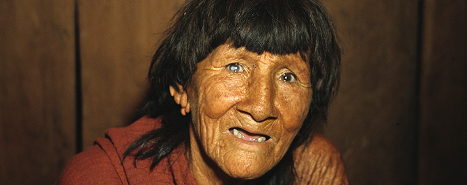 Cataract lady brazil