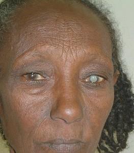 Woman needing eye surgery