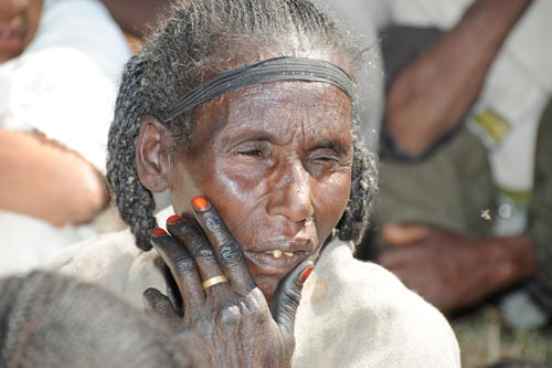 Woman having had eye surgery
